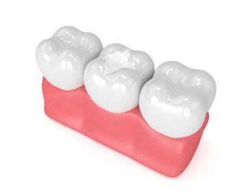 Scellant dentaire - Bruxisme-Famili-Dent Granby, Plessisville-Sorel-Tracy