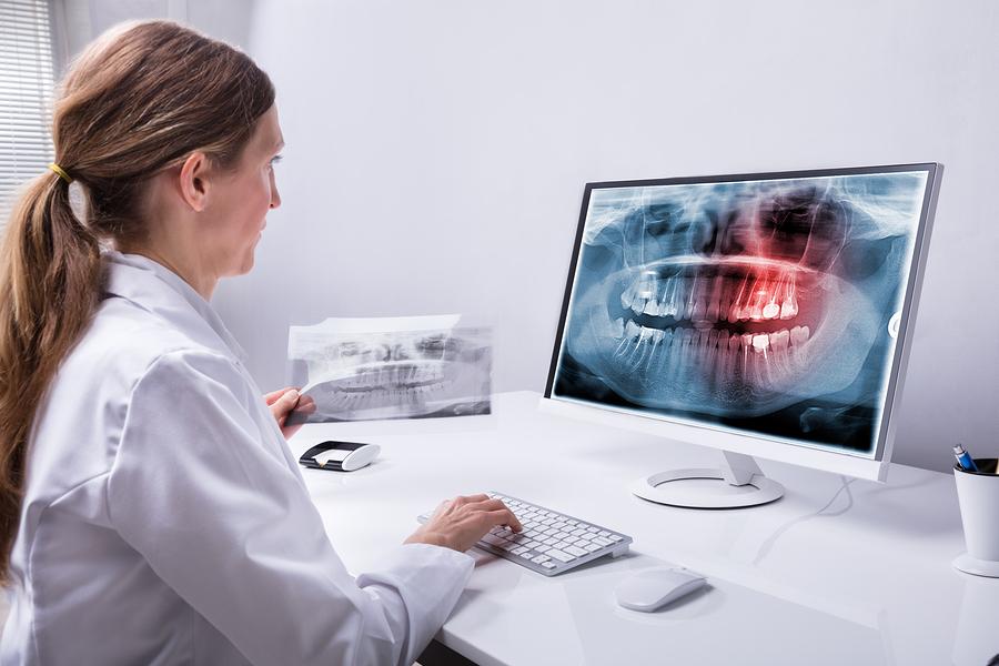 Radiographie numérique-Clinique dentaire Famili-Dent à Granby, Plessisville et Sorel-Tracy