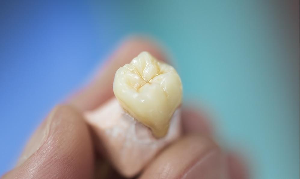 conseils-apres-lextraction-dune-dent-famili-dent-2